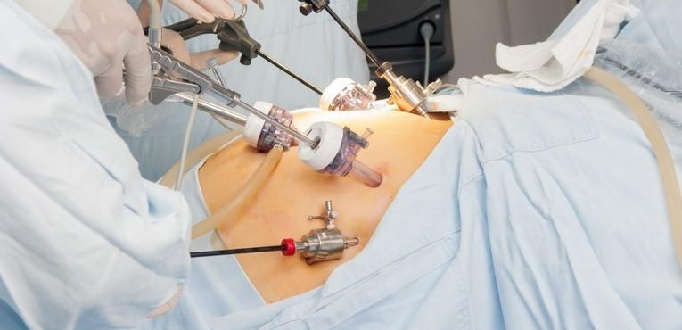 Otyłość - leczenie chirurgiczne