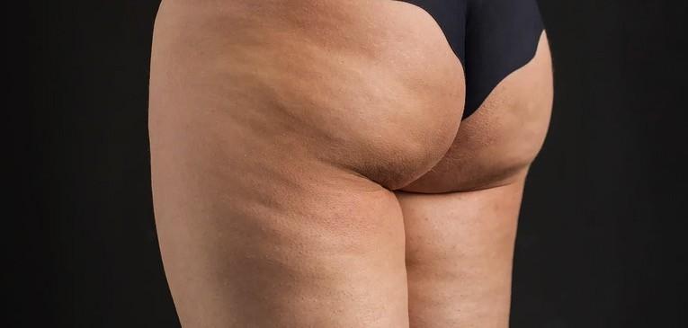 Tkanka tłuszczowa na udach